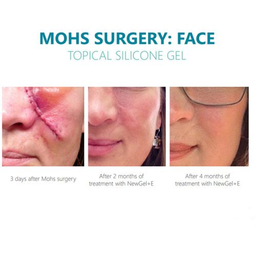 NewGel+ E Silicone Gel with Vitamin E Before & After Photo Showing Mohs Surgery Scars on the Face
